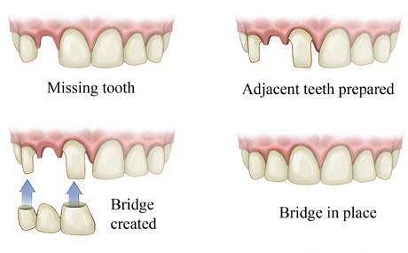 Crown and Dental Bridge