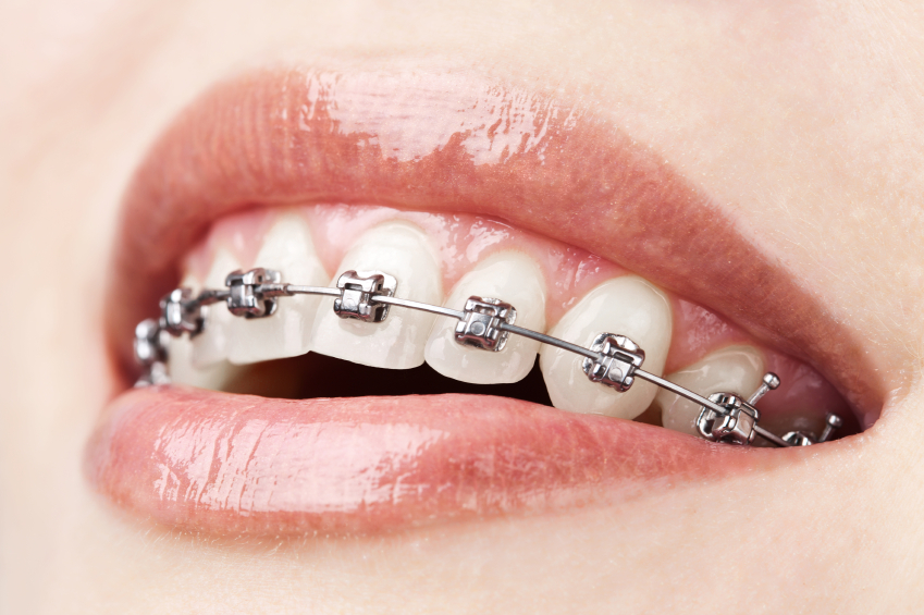 5 Tips for Taking Care of Your Teeth When You Have Braces