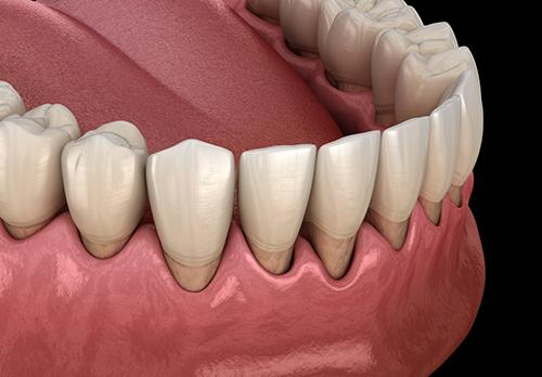 illustration of periodontitis